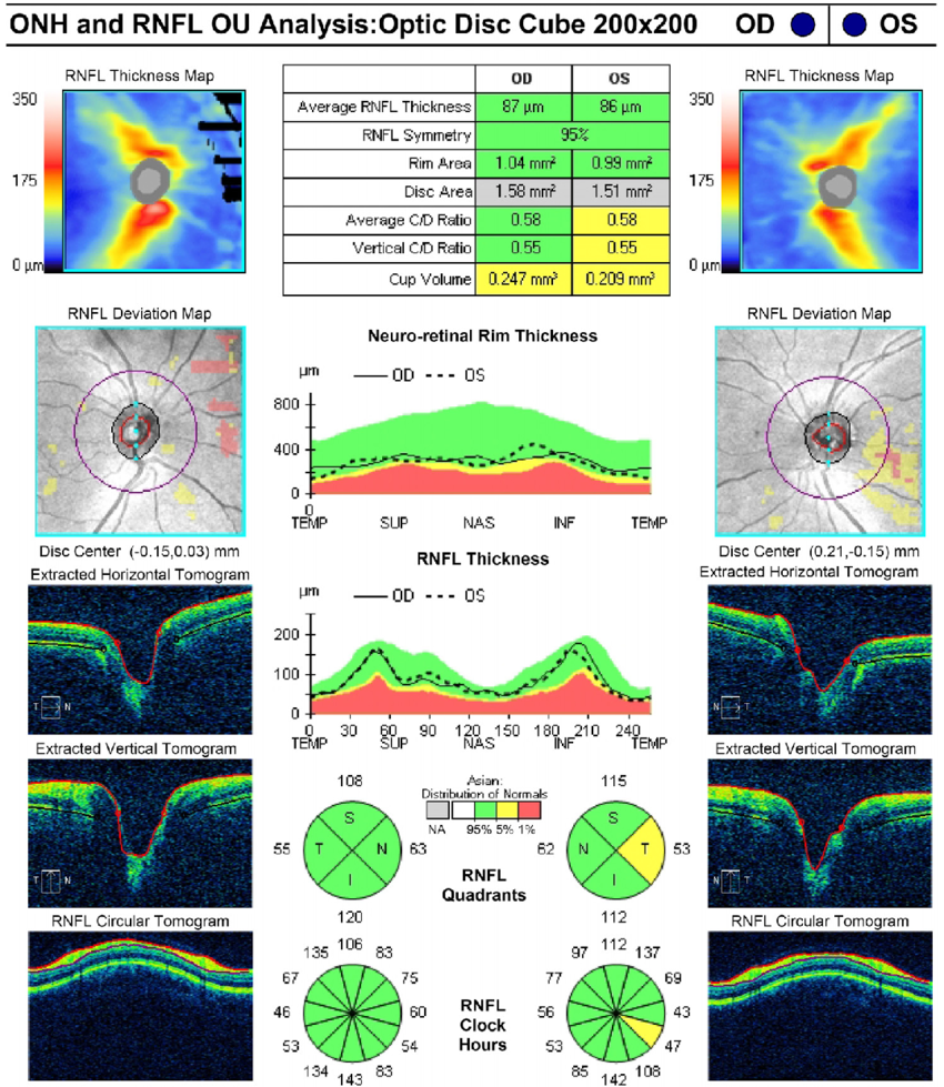 Optic Nerve Cupping: Normal RNFL Thickness In Optical Coherence Tomography. ONH