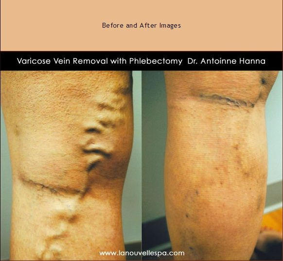 Phlebectomy A Varicose Vein Removal Procedure That Uses Tiny Incisions To Remove Veins Under Local Anesthesia Before And After Photos By Dr Hanna At