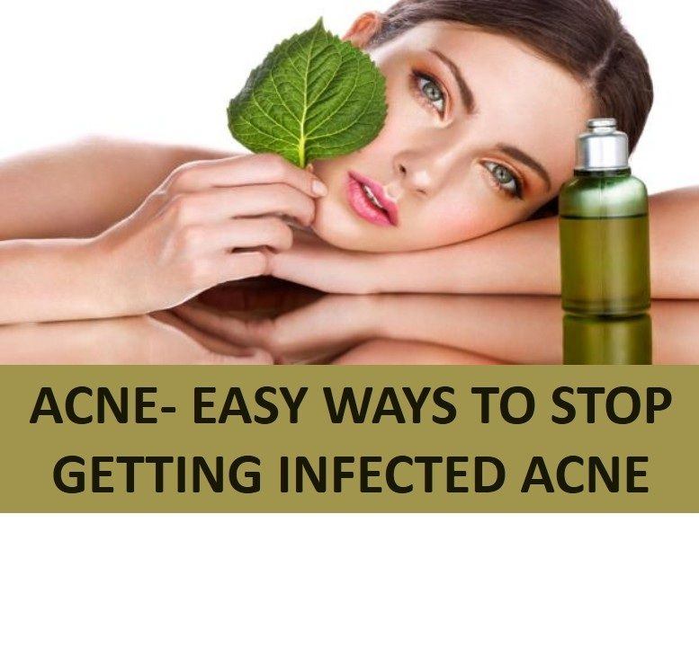 Hasil gambar untuk Acne- Easy Ways to Stop Getting Infected Acne