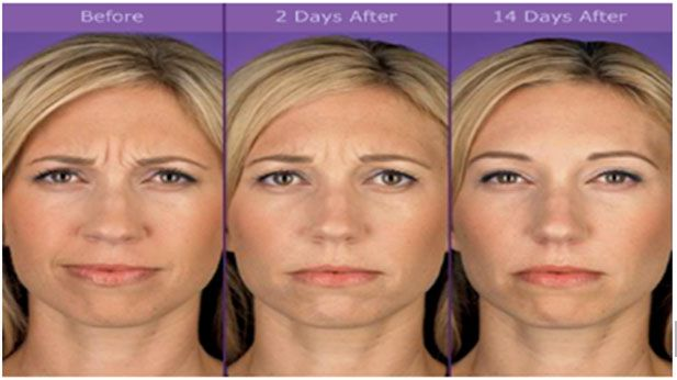 """Frown lines between the eyebrows """"11"""" 