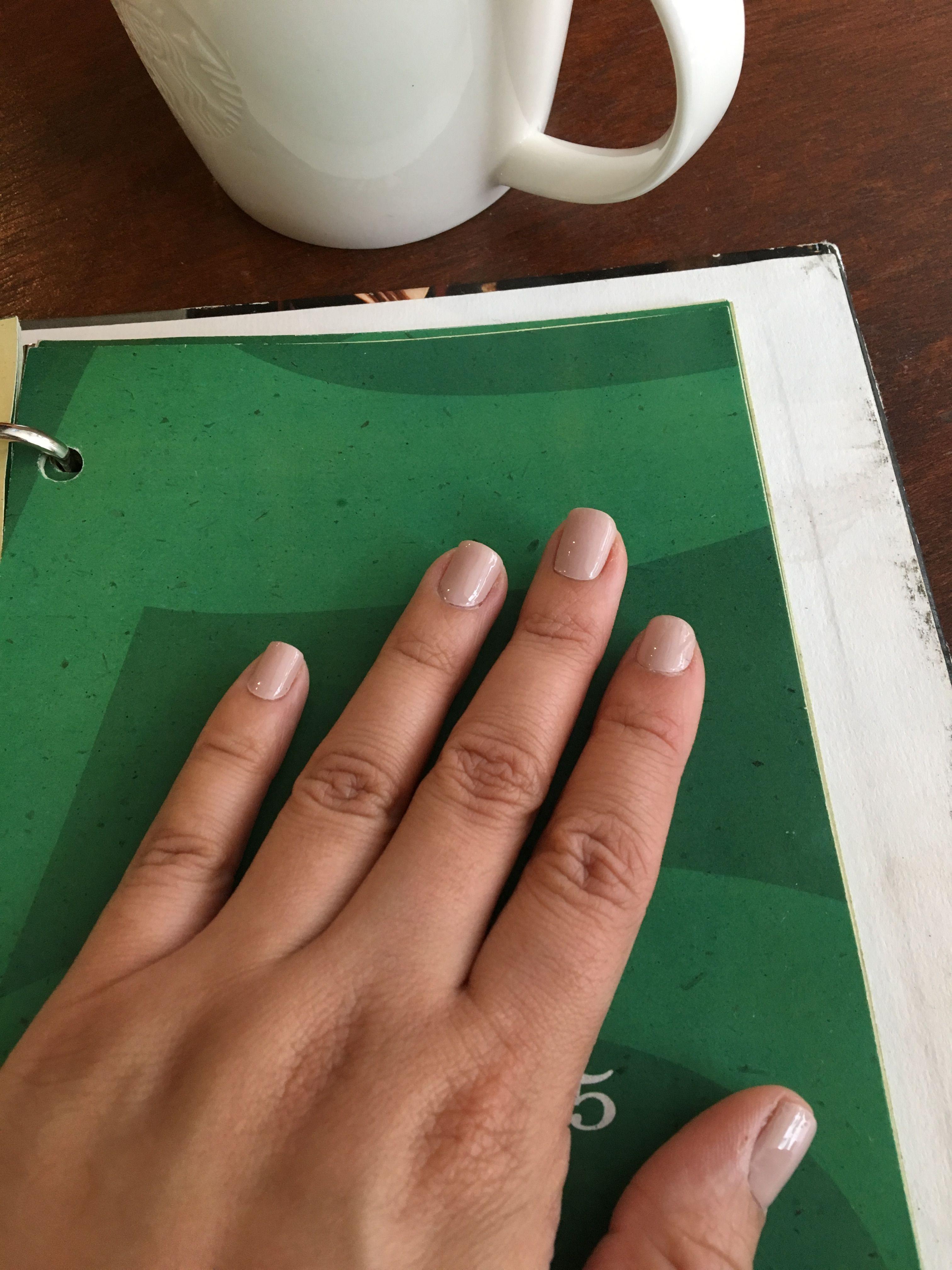 Increíble Toe Decoloración De Uñas De Color Marrón Patrón - Ideas ...