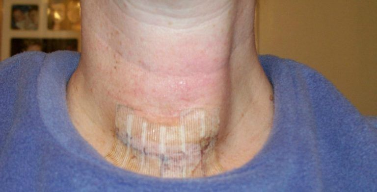 Thyroid Surgery Recovery Photos Progress Reports What To Expect