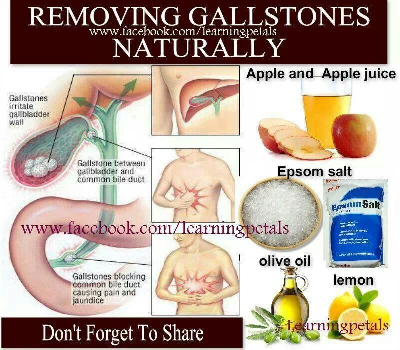 Gall stone remove naturally Healthy Times Pinterest