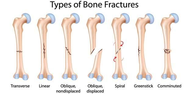 types of fractures - bodywellnessprogram | occupational, Human Body