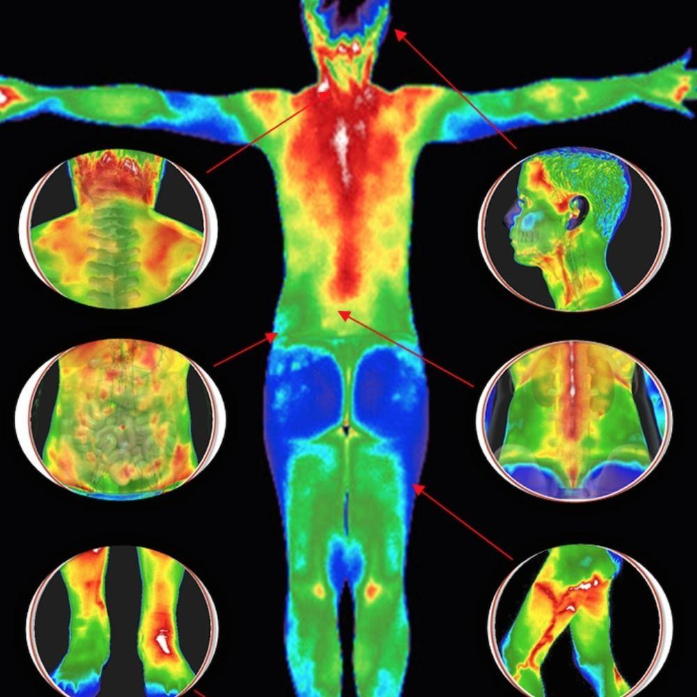 Infrared thermography (IRT), thermal imaging, and thermal