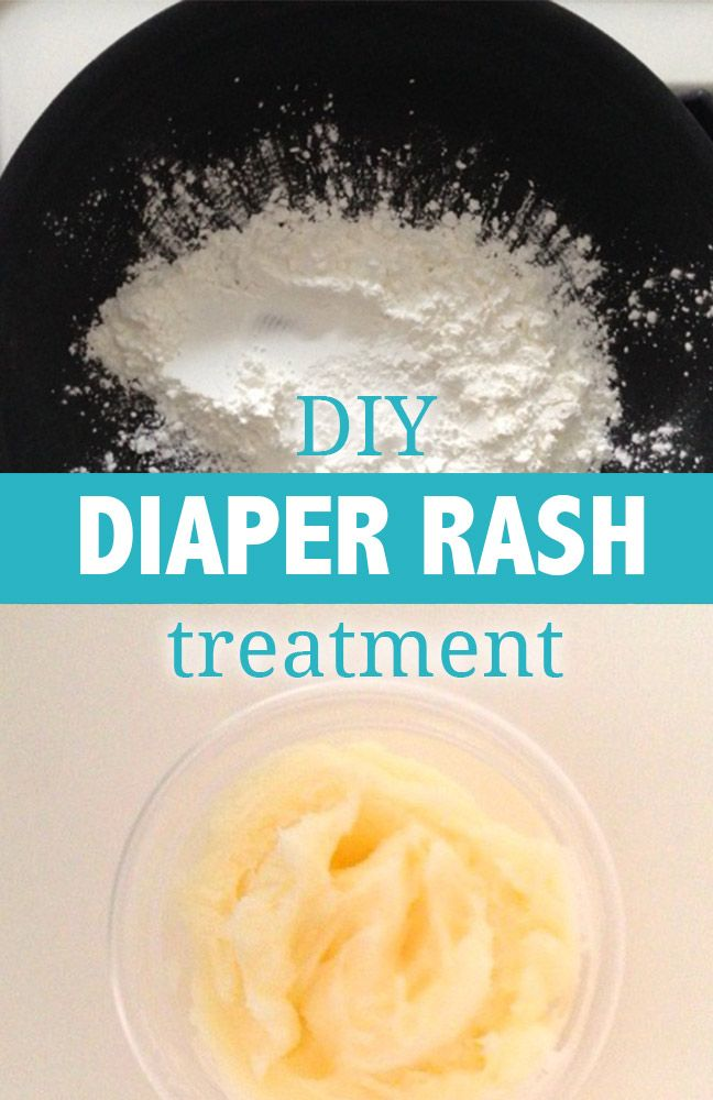 Best 25 Diaper Rash Treatment Ideas On Pinterest Rash