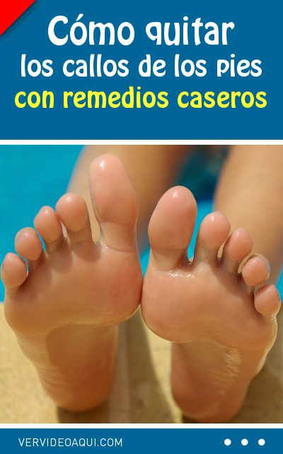 Cómo Quitar Los Callos De Los Pies Con Remedios Caseros Beauty Tips For Skin Beauty Hacks Skincare Natural Beauty Tips