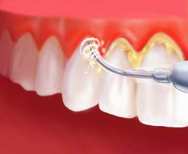 Lpkiukiu Com Memiliki Gigi Putih Bersih Dan Bebas Dari Plak