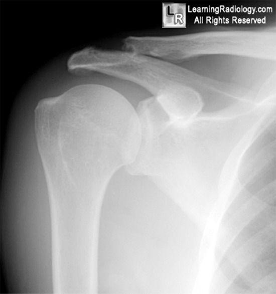 Posterior Shoulder Dislocation - Health, Medicine and Anatomy ...
