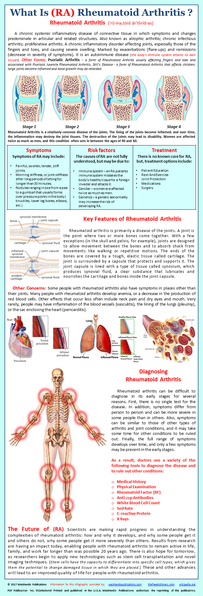 A chronic systemic inflammatory disease of connective tissue in a chronic systemic inflammatory disease of connective tissue in which symptoms and changes predominate in articular publicscrutiny Choice Image
