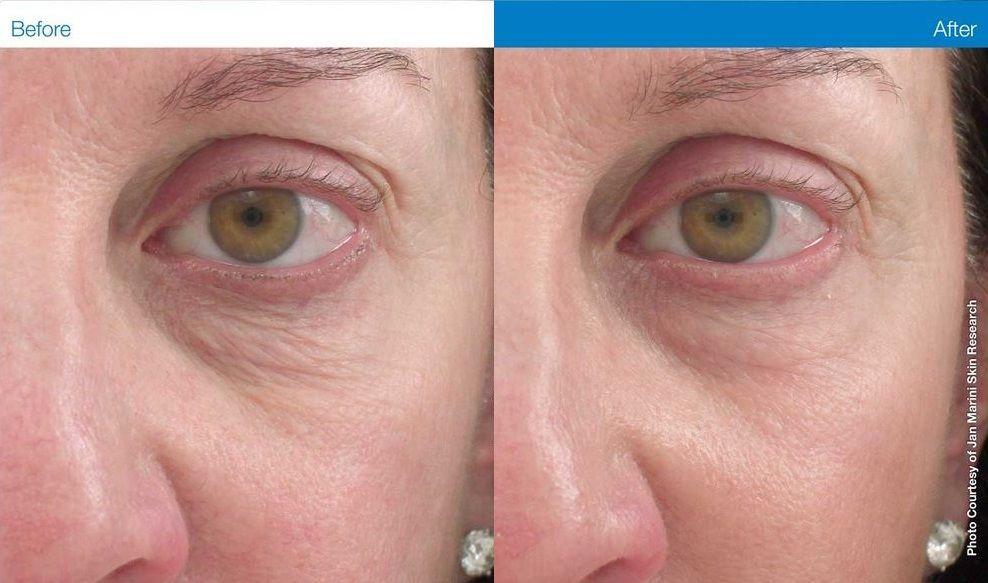 Transformationtuesday Jan Marini Marini Luminate Eye Gel Improves Dark Under Eye Circles Discoloration Loss Of Fir Eye Gel Serious Skin Care Dark Under Eye