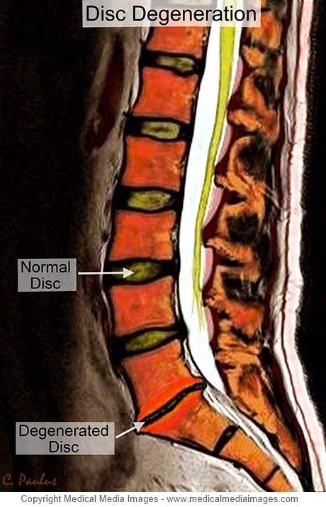 Color Mri Medical Image Showing Disc Degeneration At The Lowest