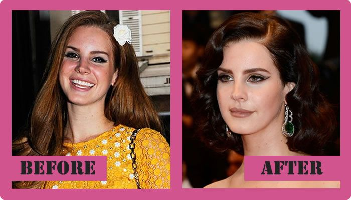 Lana Del Rey Plastic Surgery Before And After Lana Del Rey