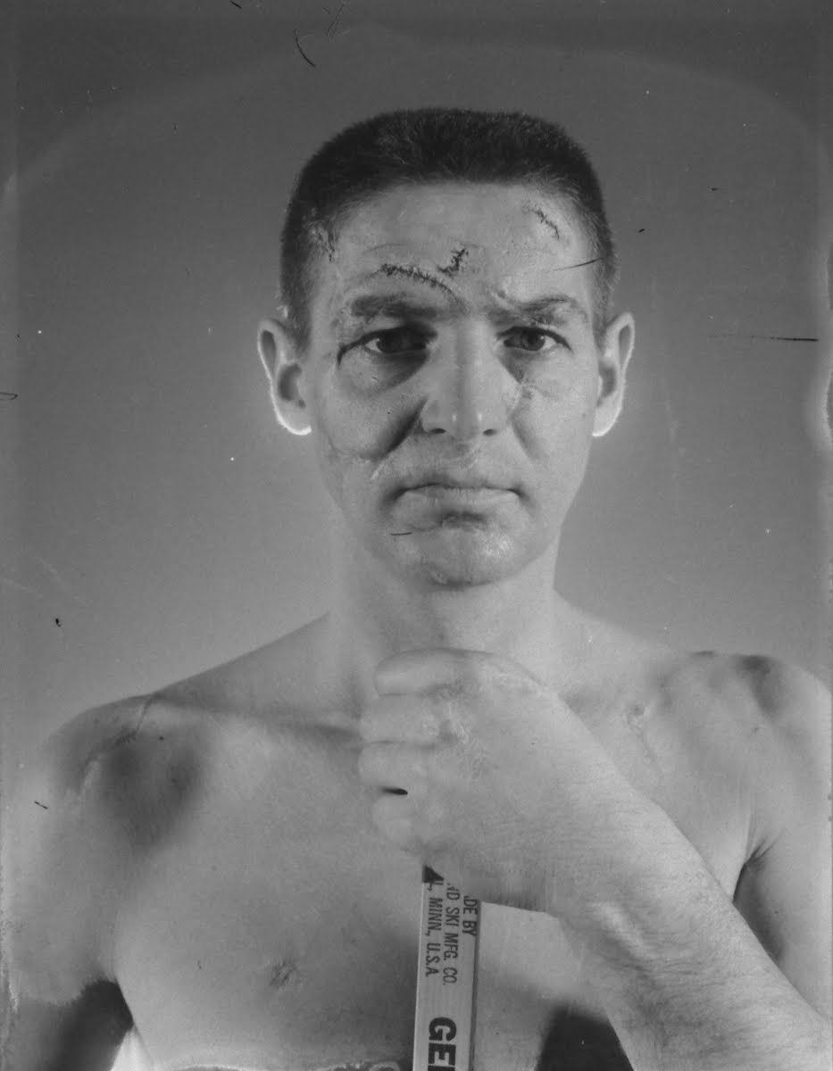 de13aec7 The famous photo of Terry Sawchuk and his scarred face. Though the scars in  the photo were faked, the intent was to show the injuries Sawchuk had  sustained ...