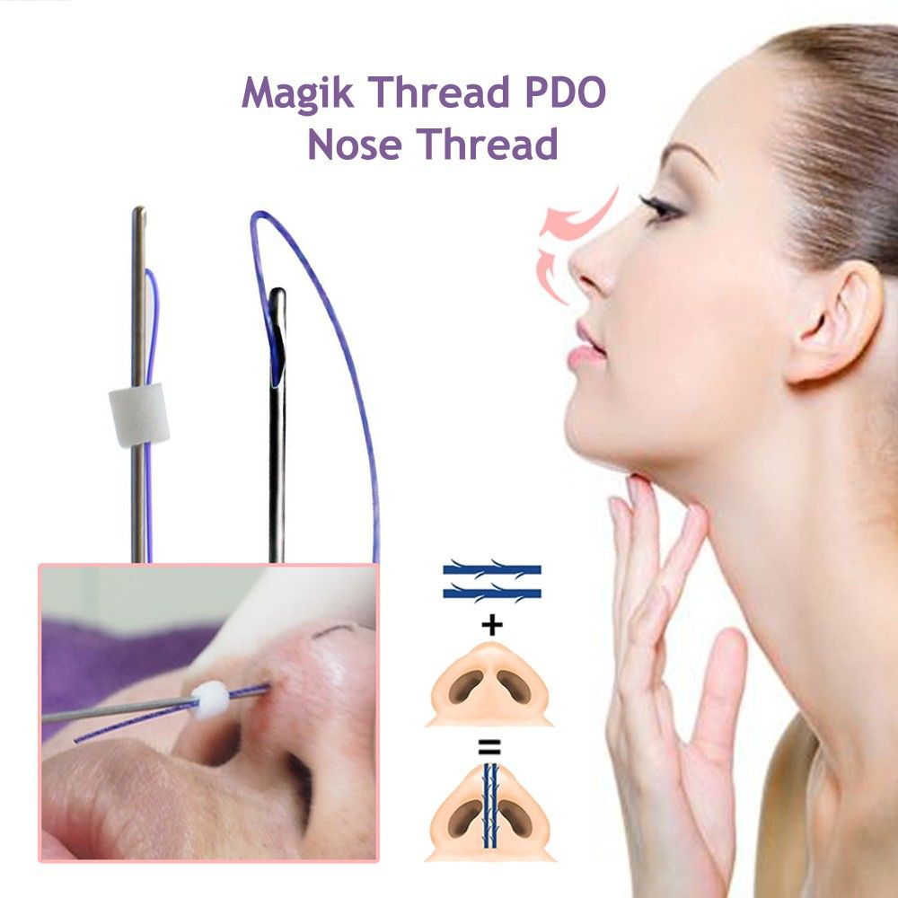 blunt tip for nose lift | pdo thread in 2019 | Thread lift, Nose