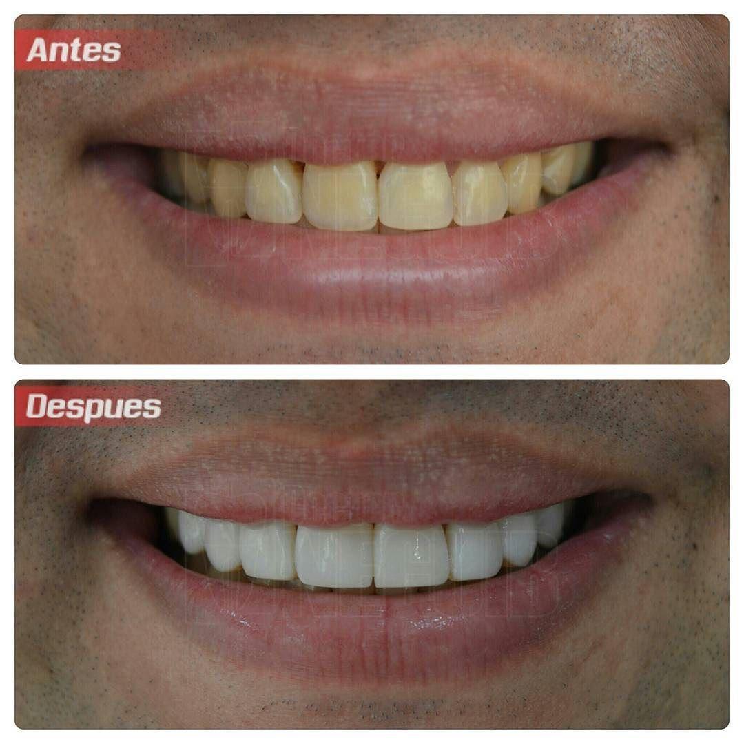 Limpieza dental antes y despues de adelgazar