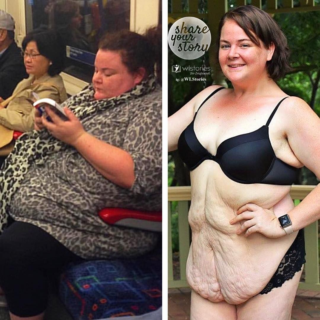 сих прикольные картинки похудения до и после бруса под усадку