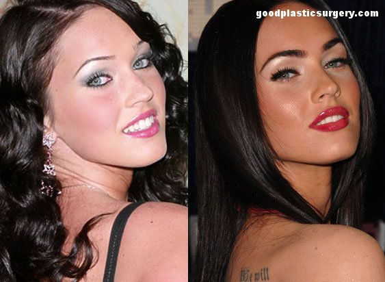 Megan Fox Before And After Rhinoplasty