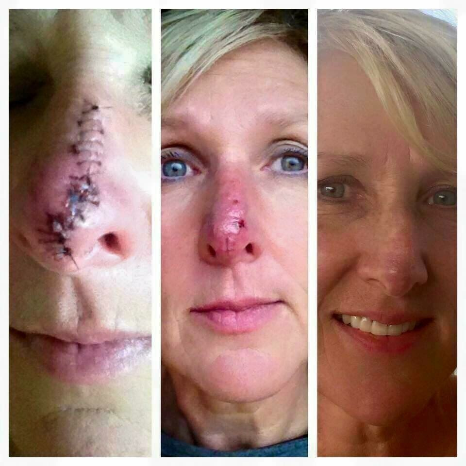 Meet Sherri Bowman She Had Basal Cell Carcinoma Removed From Her Nose On November 10th Far Left Pic Stitches Were R Rodan And Fields Rodan And Feilds Rodan