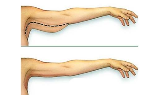 Perdre la graisse des bras : des exercices pour perdre et ...
