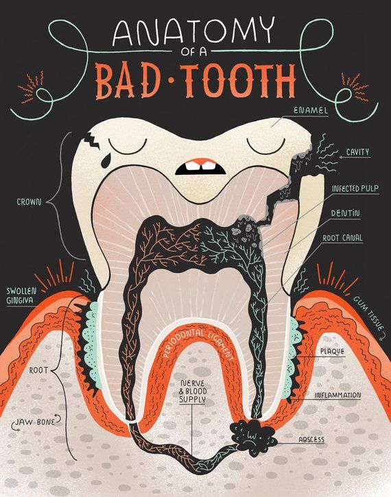Anatomy of a Good Tooth and Bad Tooth: Two Art print Set | dental ...