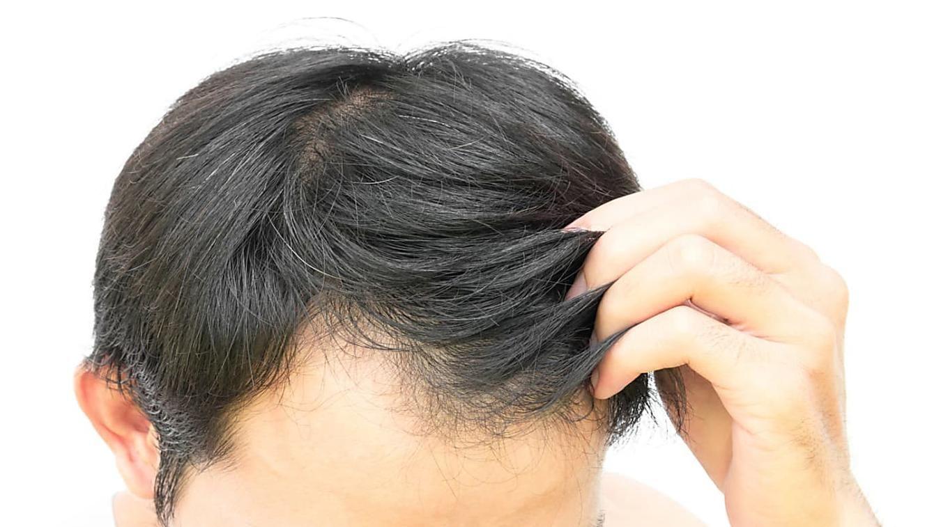 Können Haare Nachwachsen