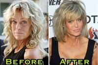 Facial farrah fawcett picture plastic surgery
