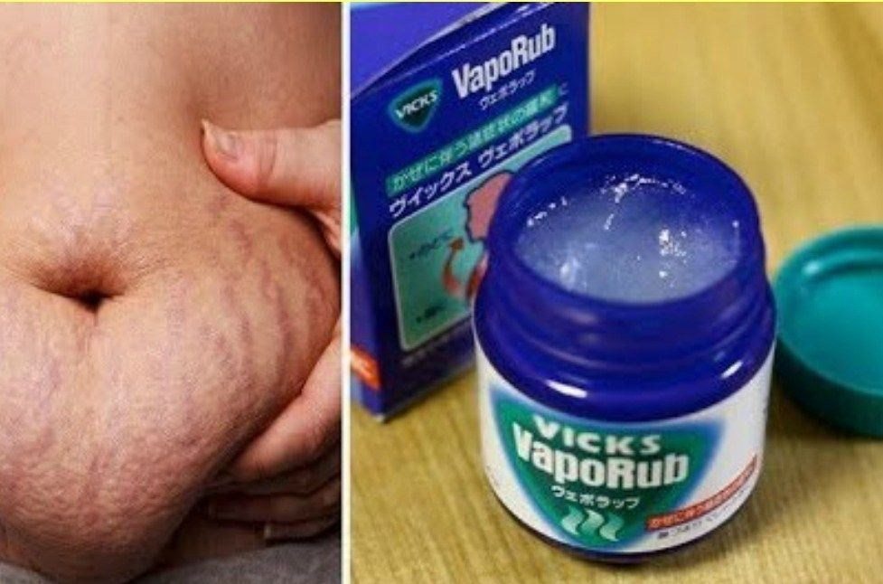 2f68c72cee8 How to Use Vicks Vaporub to Get Rid of Accumulated Belly Fat And Cellulite
