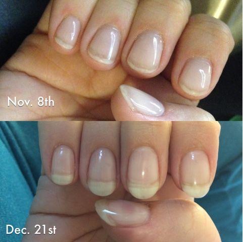 Acrygel 6 Week Follow Up Nails Nail Polish Beautiful Nails