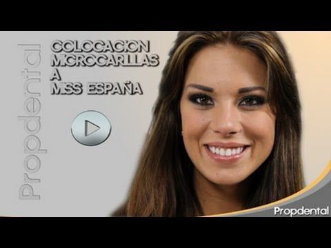 Carillas De Porcelana De La Miss España Para Miss Universo Carillas De Porcelana Carillas Dentales Caras