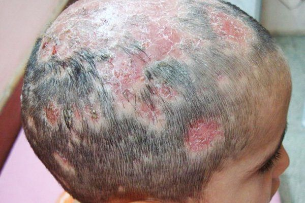 Kerion a kerion is actually a severe form of tinea capitis, which is a