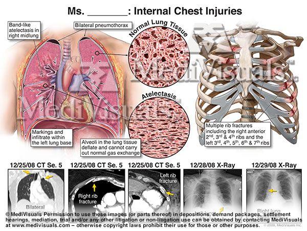 Internal Chest Injuries