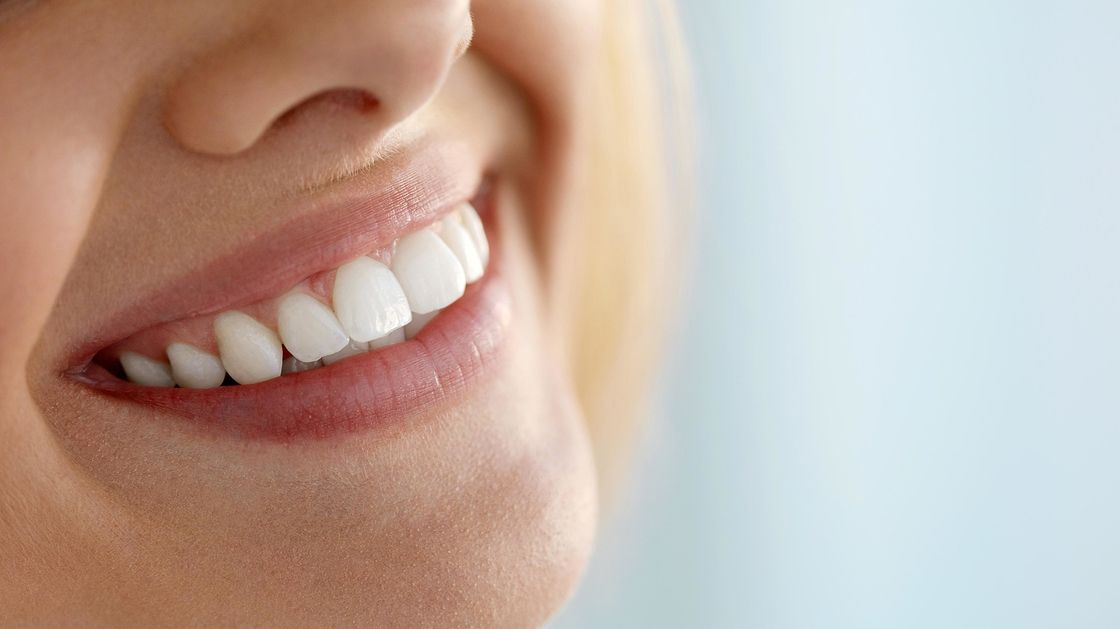 Kellertävätkö hampaasi? Yhdeksän vinkkiä valkeampaan hymyyn luonnollisesti. http://www.radionova.fi/uutiset/terveys-ja-hyvinvointi/kellertavatko-hampaasi-yhdeksan-vinkkia-valkeampaan-hymyyn-luonnollisesti-138158