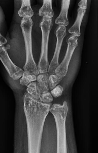 Osteopoikilosis | Radios | Pinterest | Radiología, Anatomía y ...