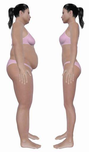 hashimotos and weight loss