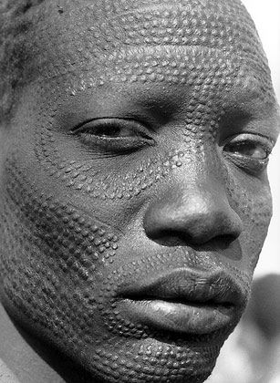 Facial scarring patterns sudan