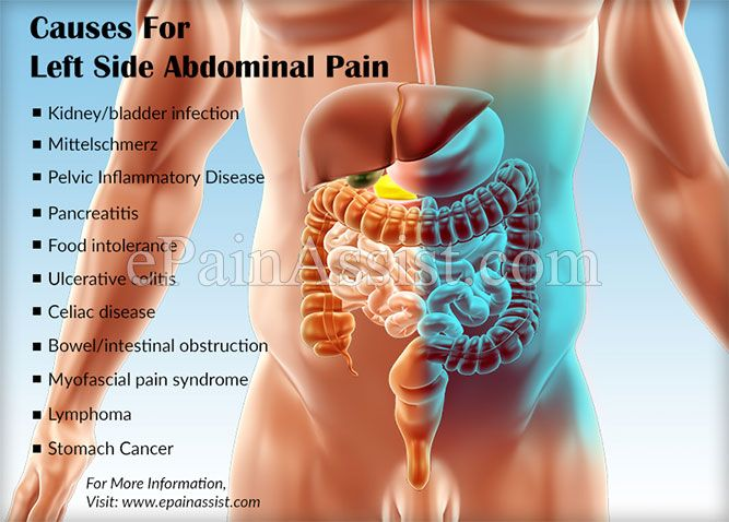 What Can Cause Left Side Abdominal Pain Abdominal Pain And Medical