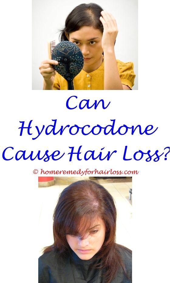 Hair Treatment | Hair loss, Hair loss treatment and Cat hair loss