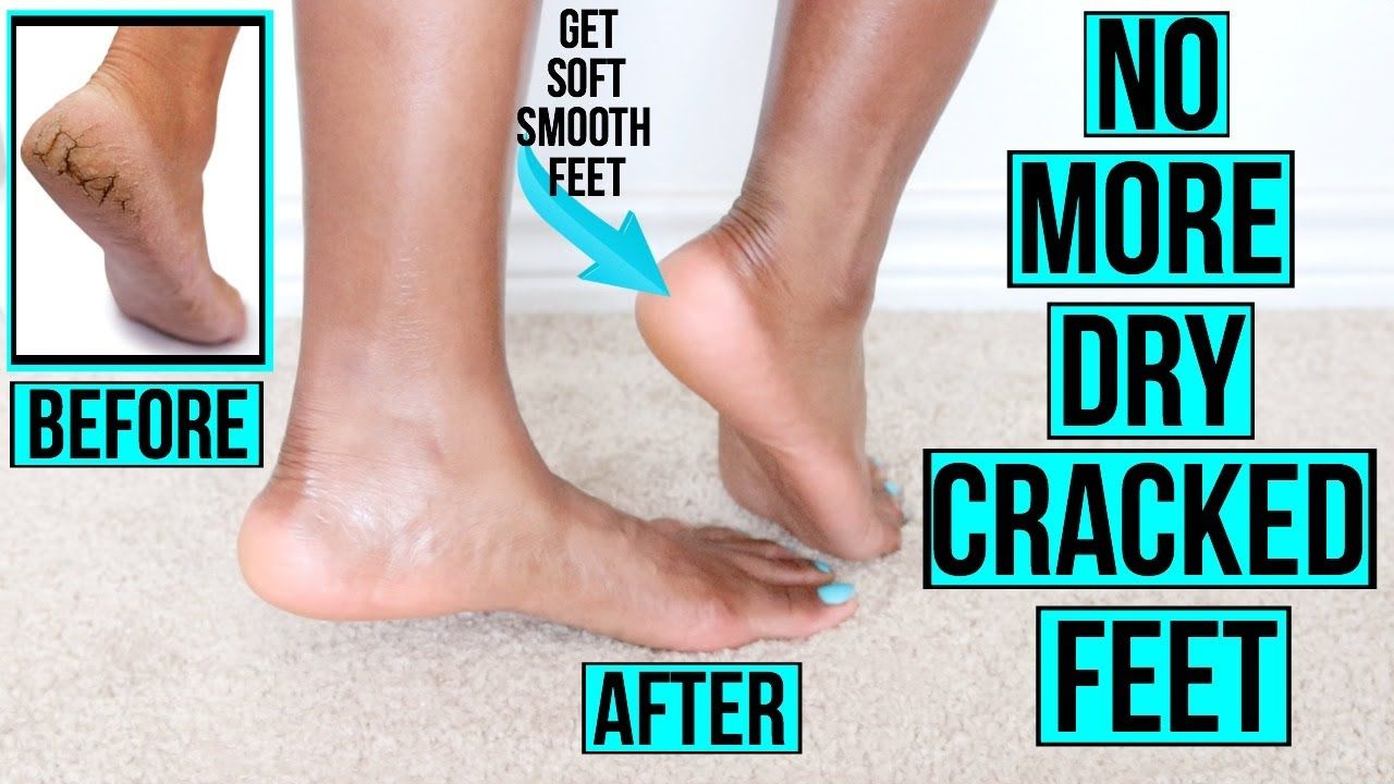 How To Get Rid Of Dry Cracked Feet Fast Naturally At Home Remedies More Youtube Dry Skin On Feet Dry Cracked Feet Dry Skin Routine