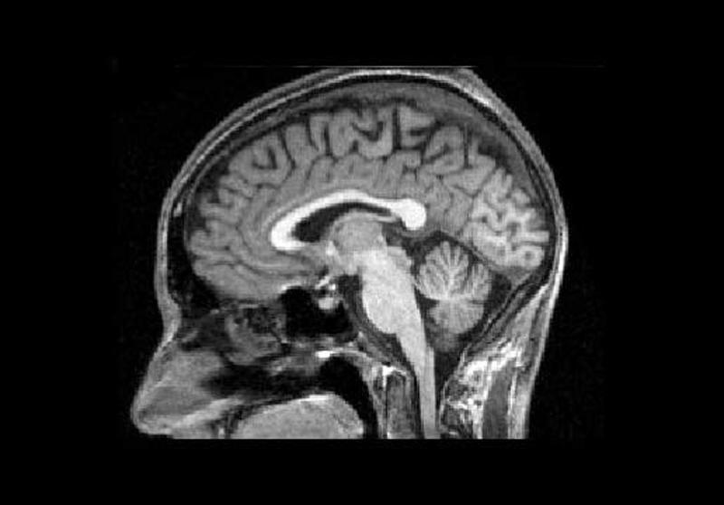 mri image of a healthy brain brain mri brain healthy
