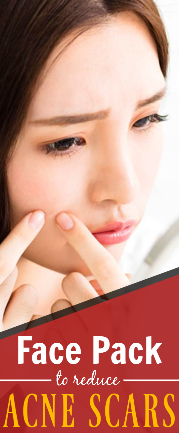 Learn exactly how to treat acne inside and out using
