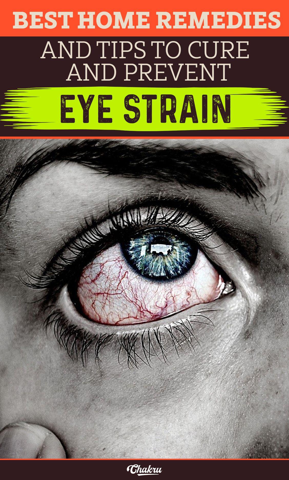 25042b40d59789646b421db7e94f3156 - How To Get Rid Of Eye Strain Home Remedies