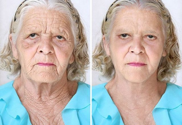 facelifts without surgery are the in thing these days particularly good facial exercise programs that