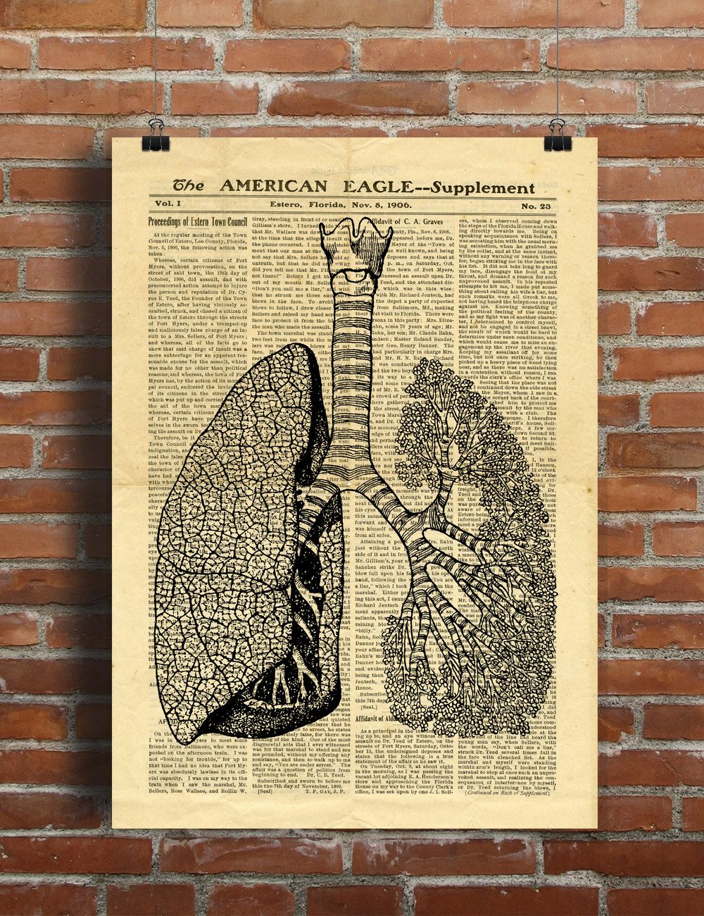 Human Lungs Anatomy Vintage Lungs Printable Collage Old Newspaper A3 ...