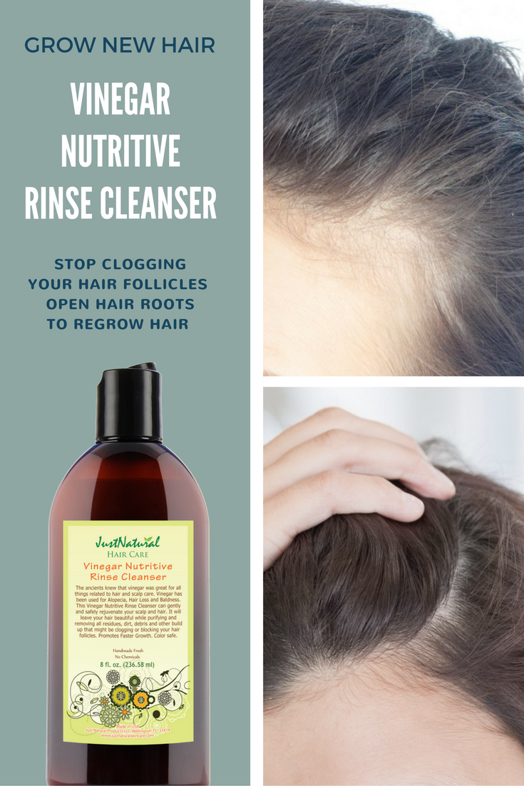 Vinegar Nutritive Rinse Cleanser | Thin Hair - Grow New Hair ...
