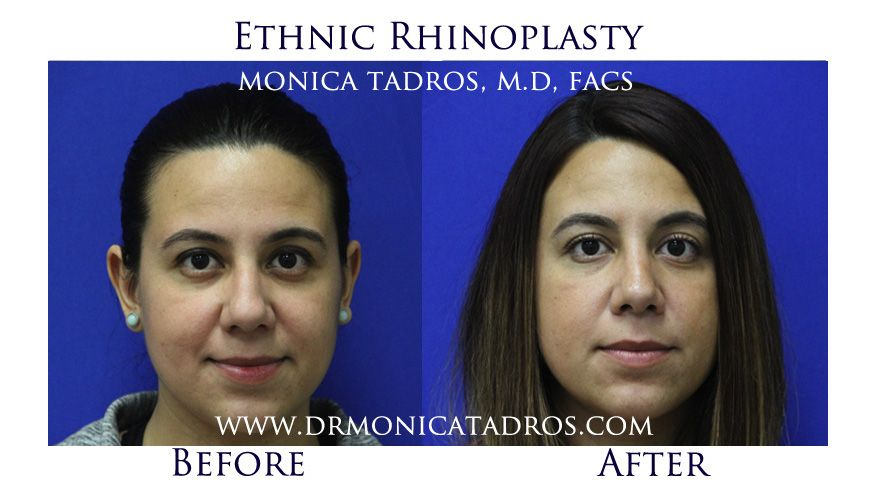 Pin on Plastic Surgery Procedures