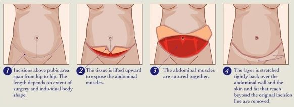 Abdominoplasty Tummy Tuck Surgery Diagram