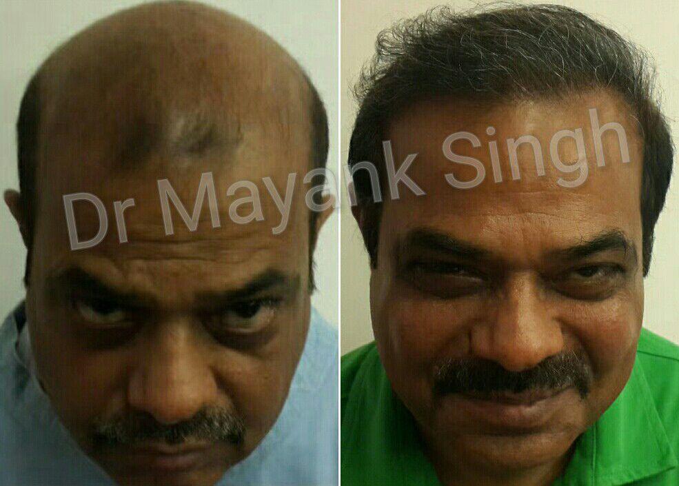 Fue Hair Transplant In Delhi Fue Hair Transplant Hair Transplant