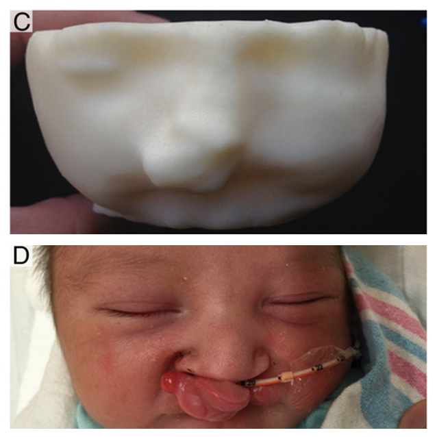 3d Printing Diagnoses Baby S Abnormality Before Birth 3d Printing Industry Baby Scan 3d Printing Abnormal
