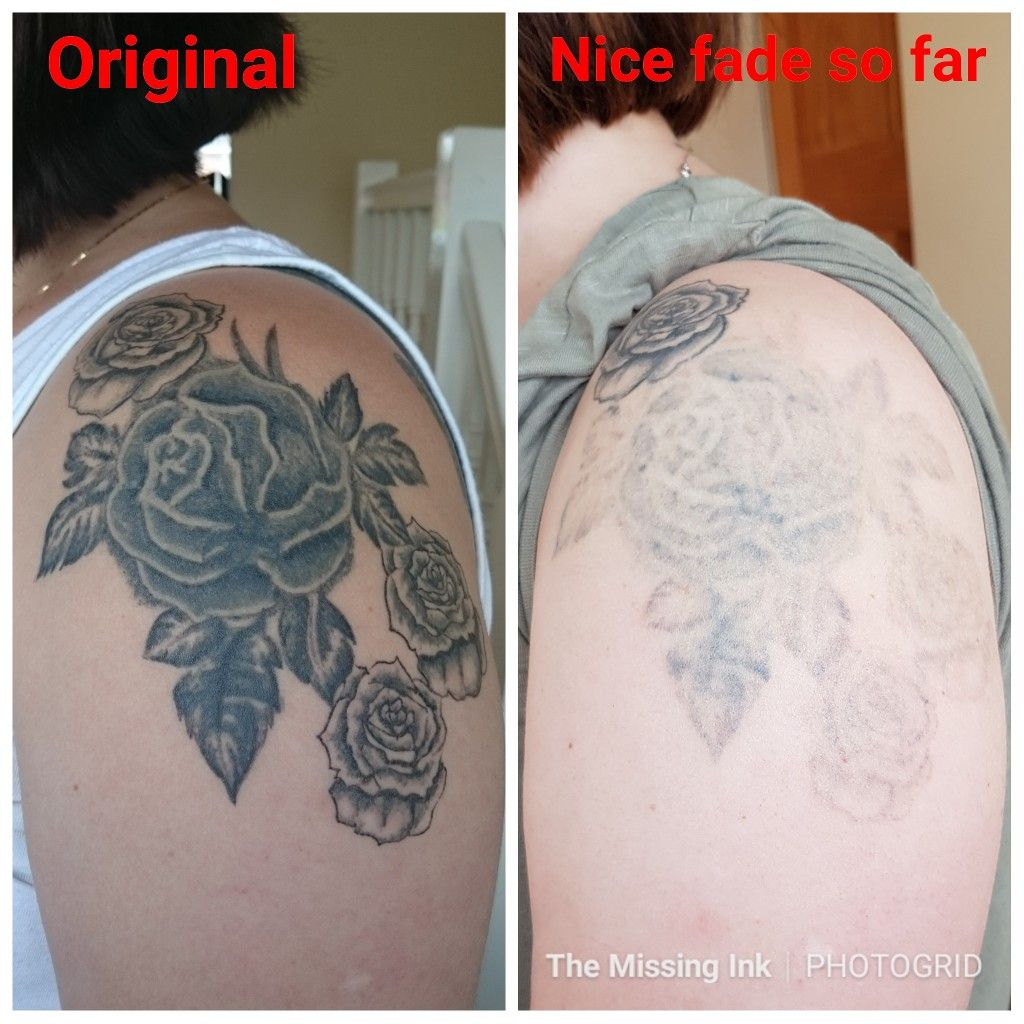 This very dark tattoo on my client's arm is fading away